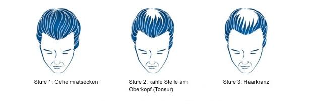 Geheimratsecken und Haarausfall bei Männern